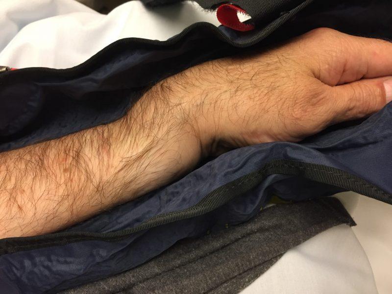 Sam Manicom broken arm