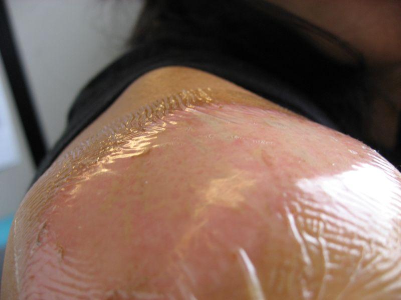 Road rash treatment