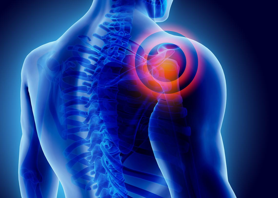 Shoulder-Pain-1