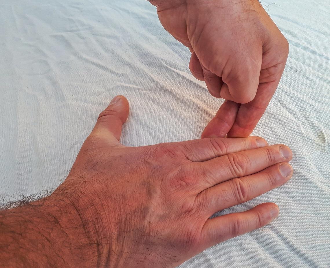 Thumb-osteroarthitis (1)